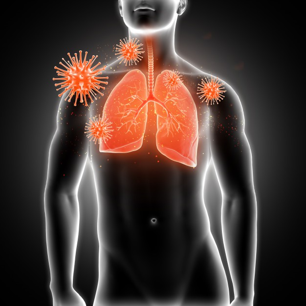affected-lungs_1048-4643